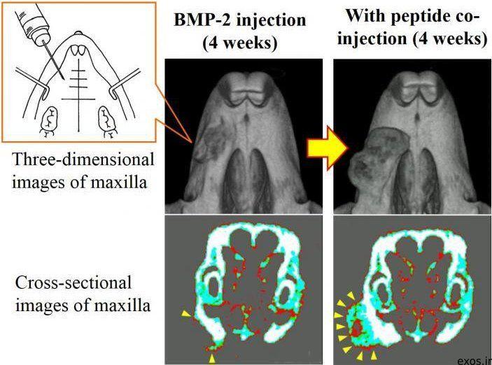 بازسازی استخوان فک با تزریق ژل
