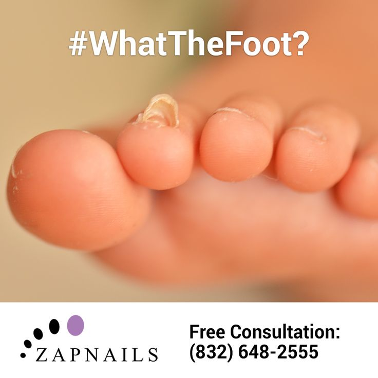 #WhatTheFoot? While toenail fungus usually makes nails thick, yellow and brittle, it can also show up as ingrown or detached nails. Call ZapNails to learn more about our unlimited laser treatment package and book a free consultation: (832) 648-2555 • http://zapnails.com/ #toenailfungus #nailfungus