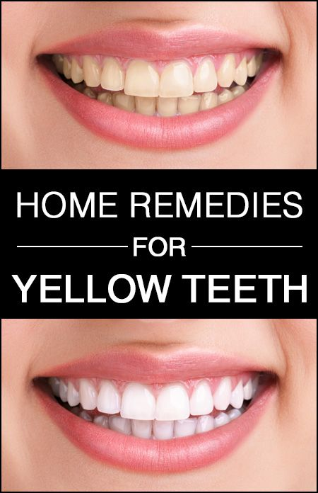 10 Effective Home Remedies for Yellow Teeth