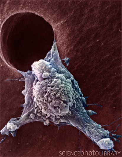 Migrating cancer cell. Coloured scanning electron micrograph (SEM) of a cultured cancer cell moving (metastasising) through a hole in a support film. Numerous pseudopodia (arm-like), fillipodia (thread-like) and surface blebs (lumps) can be seen. These features are characteristic of highly mobile cells, and enable cancerous cells to spread rapidly around the body, and invade other organs and tissues (metastasis).