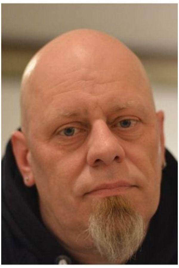 Telogen Effluvium Vs Male Pattern Baldness Mpb Differences Balding Male Pattern Baldness Pattern Baldness