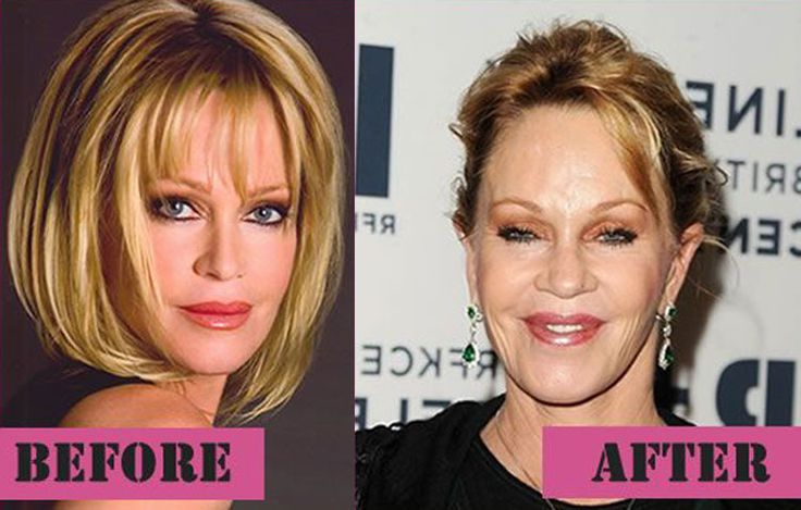 Melanie Griffith Then And Now Celebrity Plastic