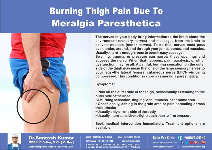 26 best images about Meralgia Parasthetica on Pinterest ...