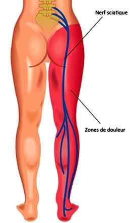 La sciatique en course à pied peut être évitée en appliquant un traitement préventif naturel, des étirements du pyramidal. Lors de la course ou en position assise, le pyramidal peut comprimer le nerf sciatique