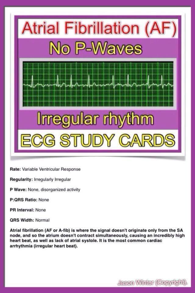 ECG study cards
