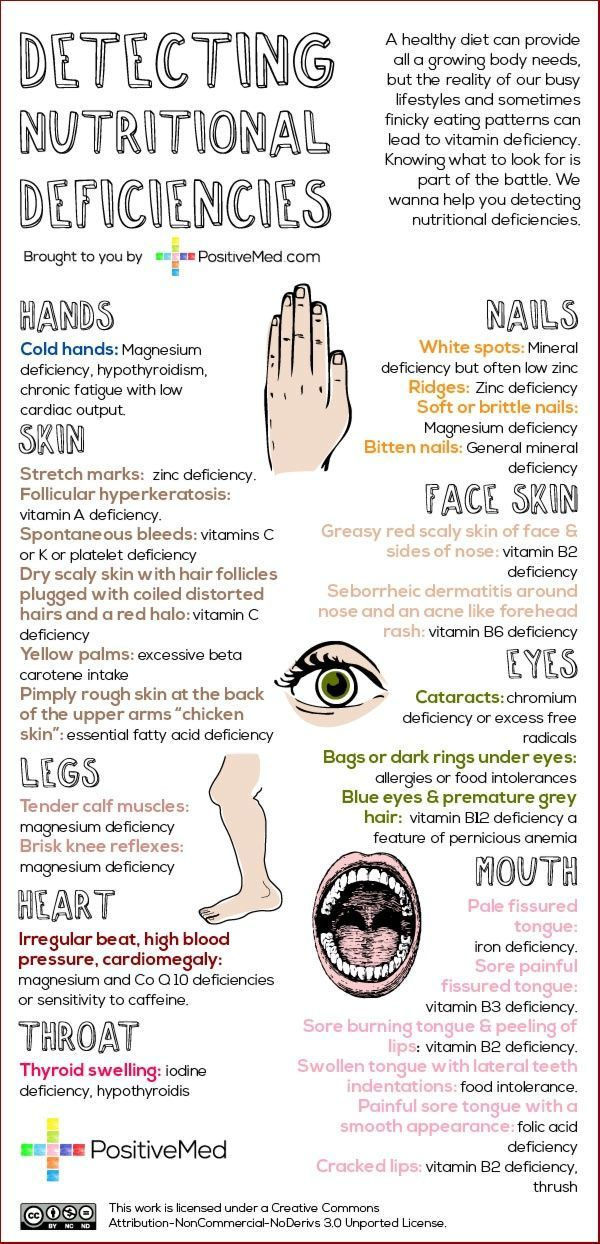 Holistic health. Listen to your body's cues. Detect nutritional deficiency with this info graphic