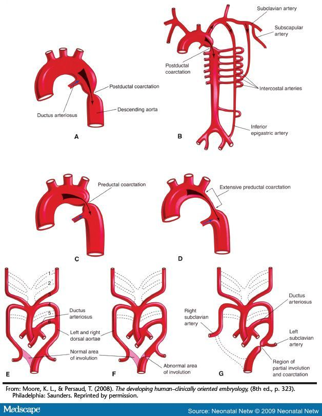 Coarctation of the aorta, or aortic coarctation, is a congenital condition whereby the aorta narrows in the area where the ductus arteriosus (ligamentum arteriosum after regression) inserts.