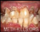 Meth mouth Photo 2