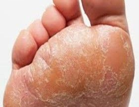how-do-you-get-rid-of-foot-fungus