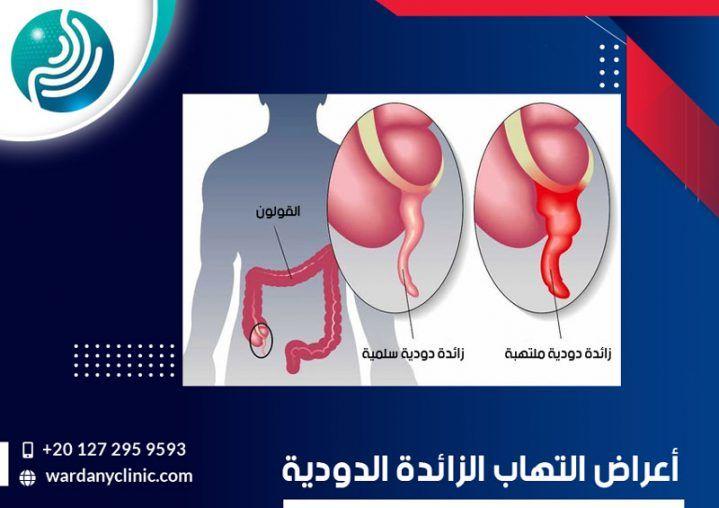 تعرف على كيفية حدوث الزائدة الدودية وما هي اعراضها وطرق علاجها