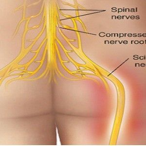 Say Goodbye To Back Pain! Here's How To Get Rid Of Back Pain In Natural Way! Successful In 95% Of Cases!