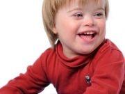 A síndrome de Down ocorre devido à presença de um cromossomo 21 a mais, além do par usual. Cientistas da Universidade de Washington conseguiram removê-lo com sucesso em uma cultura de células, trazendo novas esperanças à medicina