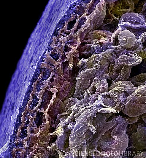 Blueberry, magnified.