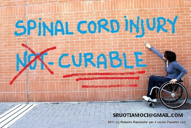 Lumbar Puncture (LP or Spinal Tap)