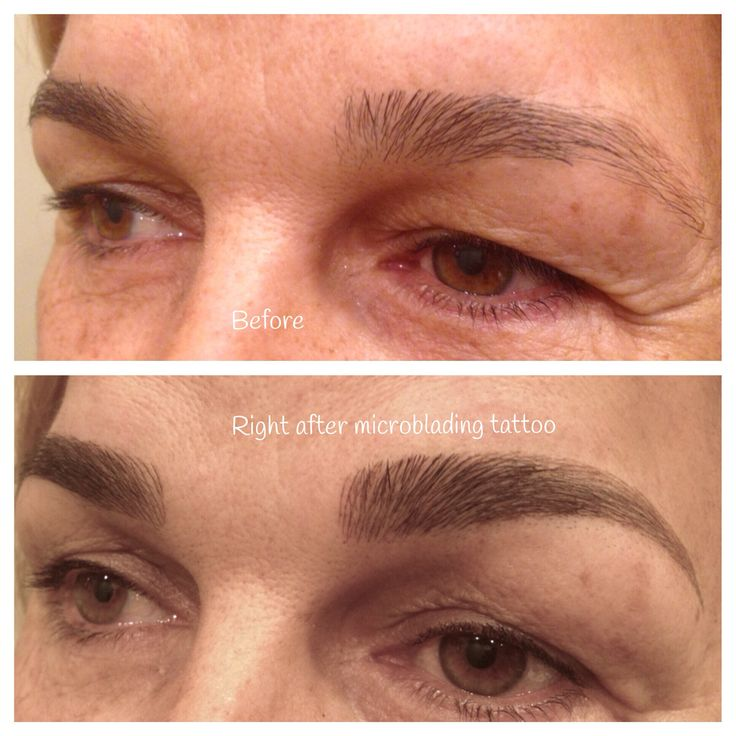 Before and after microblading which is a manual tattoo ...