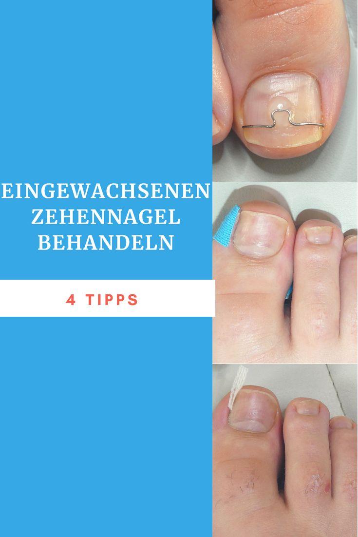 Eingewachsenen Zehennagel behandeln | Zehennägel