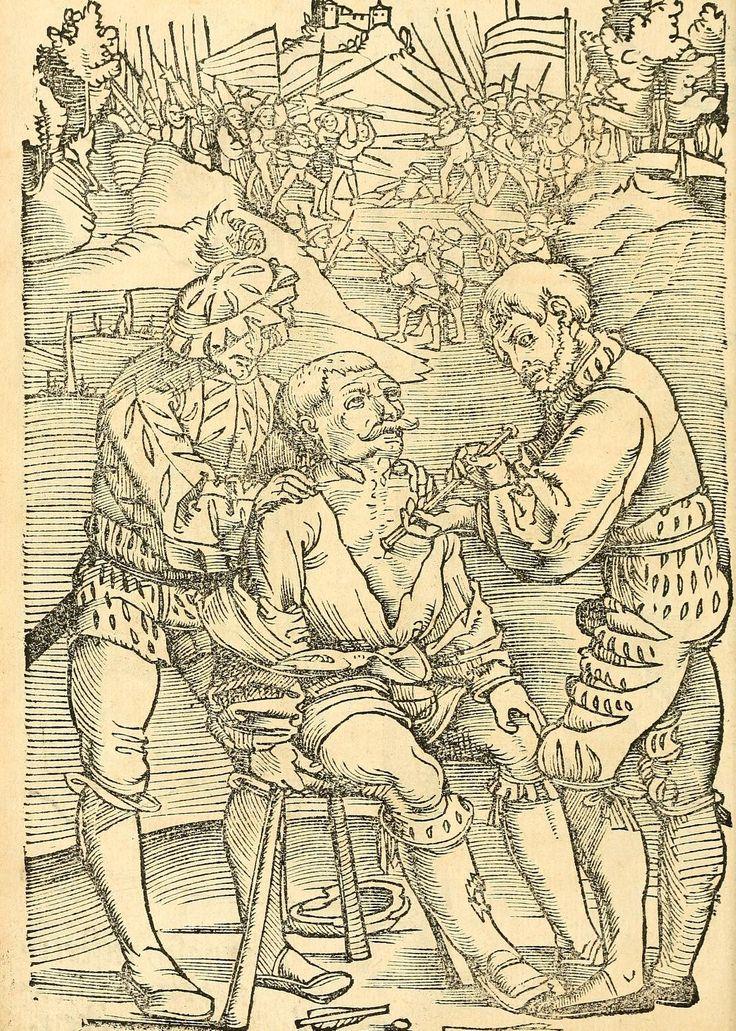 Artist: Hans Wechtlin, Title: Feldbuch der Wundartzney, Page: 106, Date: 1528