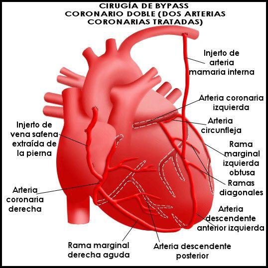 Cómo es un bypass coronario.