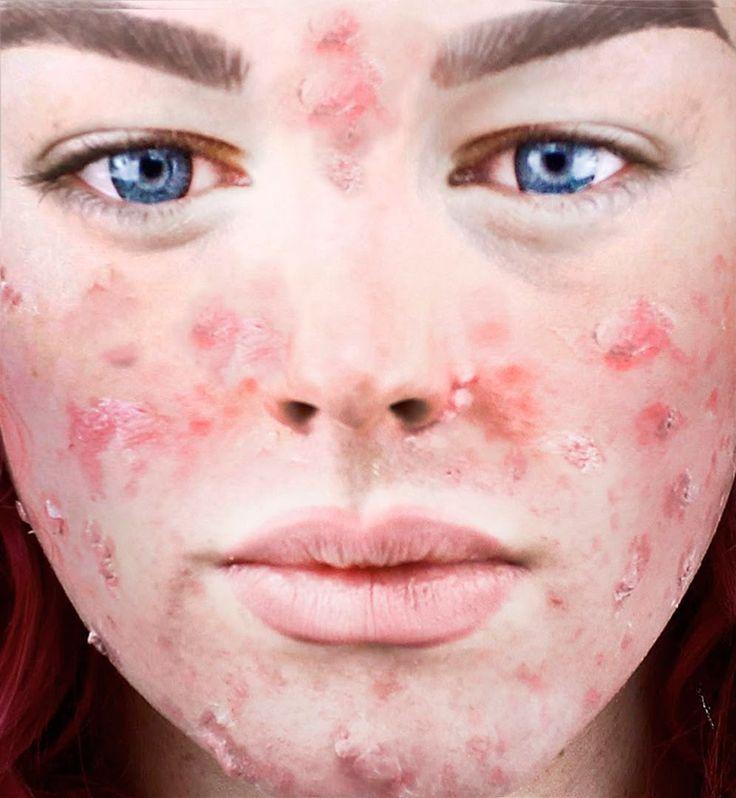 ¡IMPRESIONANTE! Cambios radicales de ACNÉ - Maquillaje - AMAZING! ACNE C...