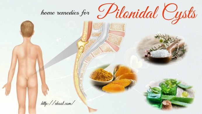 Looking for home remedies for pilonidal cysts? Here are top 15 natural solutions for pilonidal cysts you should know.