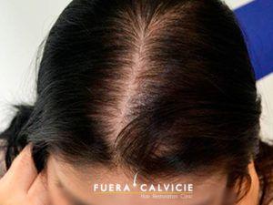 La alopecia femenina tiene múltiples causas entre ellas se encuentran: Desequilibrio hormonal, hipertiroidismo, anemia, estrés emocional, ansiedad, y otros