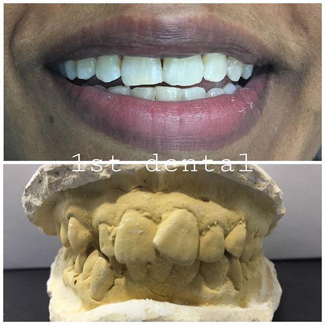 Mejores 89 imgenes de shah alam dentist en pinterest what a lovely transformation braces bracesoff solutioingenieria Choice Image