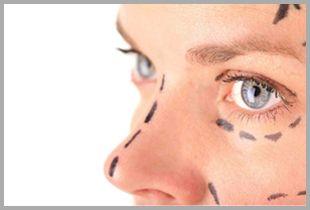 Rinoplastia  #cirugiadeabdomen #Liposucción #Vaser #Abdominoplastía #Lipoaspiracion #CirugiaPlastica #cirugía #lipo #liposuccion #lipovaser #Blefaroplastia #rinoplastia