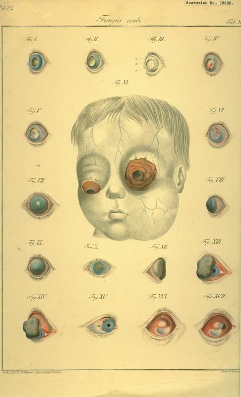 Vintage anatomical diagrams of the human eye