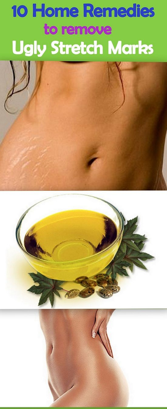 Top rid of Stretch Marks naturally !