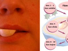 Jak rychle vyléčit herpes či opar na rtech
