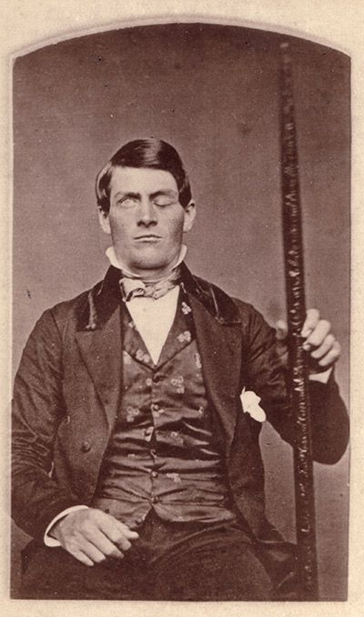 Phineas Gage, Neuroscience's Most Famous Patient -Each generation revises his myth. Here's the true story.