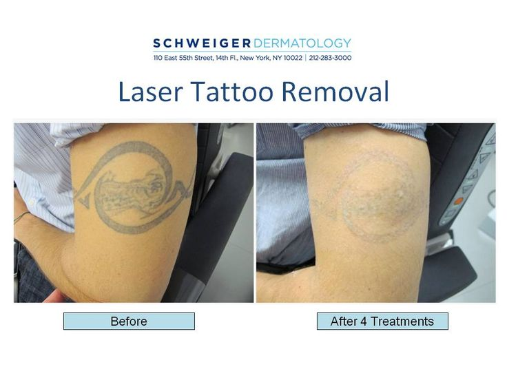 34 best schweiger dermatology images on pinterest city for Laser tattoo removal manhattan