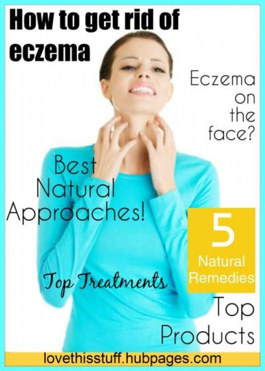 How Do You Get Rid Of #Eczema Using Vitamins And Natural Remedies? http://jewelzclassic.flamingstudiospso.c2strack.com