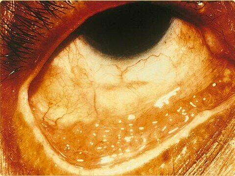 Conjunctivitis due to chlamydia.