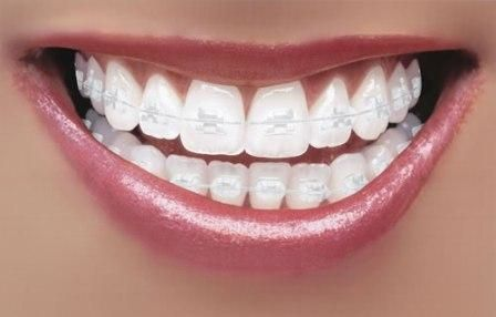 Cosmetic #Fixed #Braces differ from #Invisible Braces in that, whilst invisible Braces sit over the #Teeth and can't easily be seen, Cosmetic Braces work more or less like traditional braces, fixing to the front of the teeth but without the unsightly metal brackets and wires.