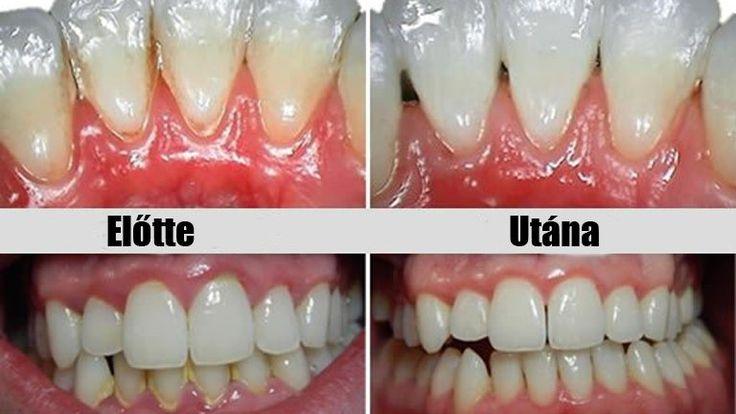 A fogkő kicsit sem egészséges és akár fogínysorvadáshoz vagy a fogak elvesztéséhez is vezethet, ezért érdemes leszedetni fogorvossal, vagy legalább...