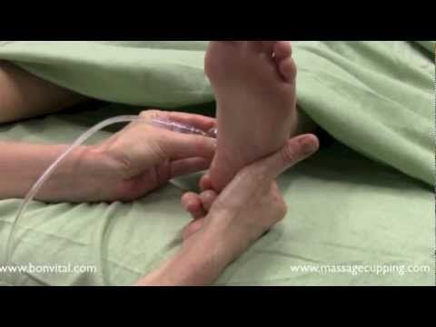 ▶ Medi Cupping for Plantar Fasciitis with Anita Shannon LMBT - Bon Vital' CE Team - YouTube