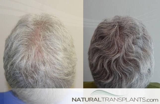 Male Pattern Baldness Cure | Hair Transplant Before and After #BaldnessCure