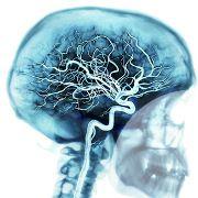 Qu'est-ce que la démence vasculaire ? (Définition, symptômes, diagnostic)