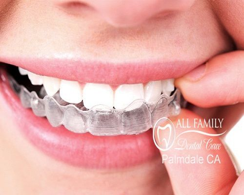 Invisalign in Palmdale can treat a variety of orthodontic problems and studies have shown that it can improve your dental hygiene. With ordinary permanent braces, food can get trapped more easily which can lead to decay. The dentists at All Family Dental Care have completed hundreds of successful Invisalign cases in the past couple of years.