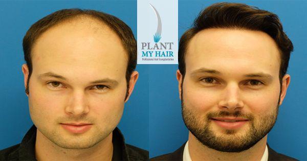 افضل مركز زراعة الشعر في تركيا مركز بلانت ماي هير افضل مركز زراعة الشعر في تركيا…