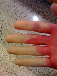 17 Best images about Health: Raynaud's on Pinterest ...