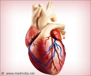 Congestive Heart Falure In Children Kawasaki Treatment
