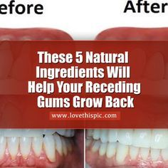These ingredients will help grow and restore receding gums.