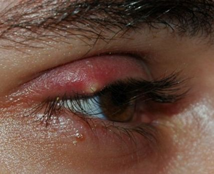 signs of a bump on your eyelid
