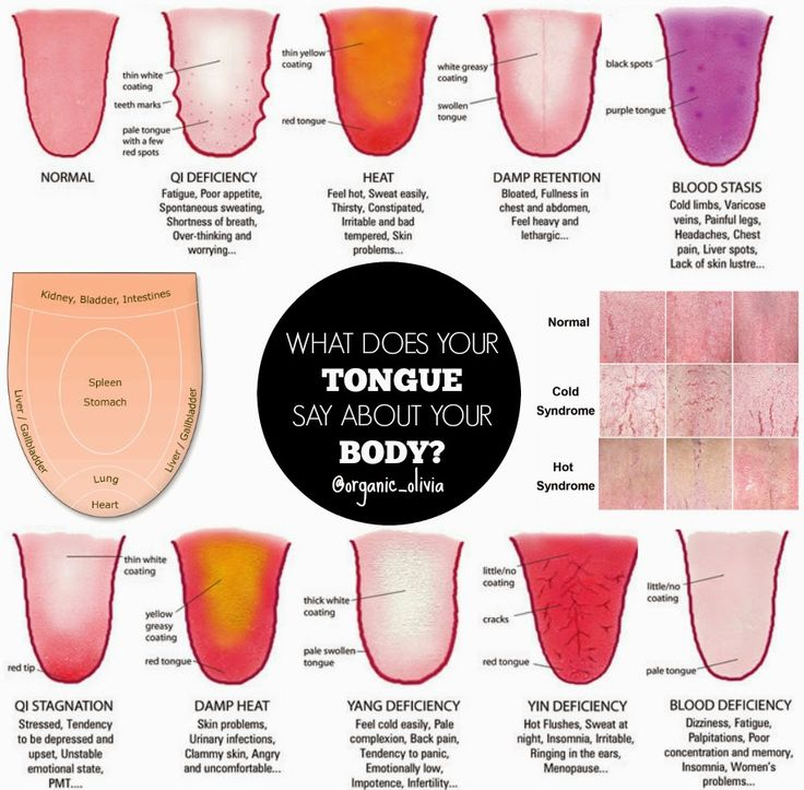 Traditional Chines Medicine: What Does You TONGUE Say About You?