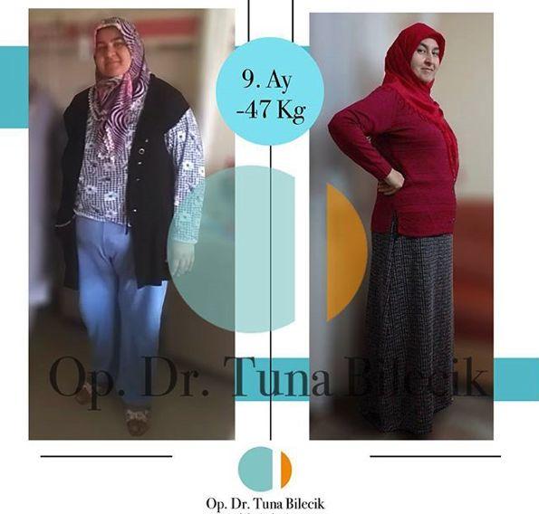 Dr. Tuna Bilecik - Tüp Mide Ameliyatı - Adana Obezite Cerrahisi