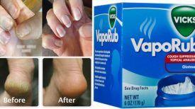 Apparemment, je n'ai jamais bien utilisé Vicks VAPORUB pendant tout ce temps là ! Voici 7 utilisations qui vous ont échappé…
