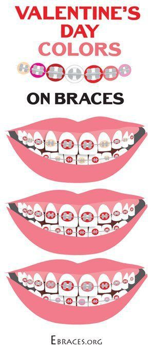 braces color combinations for valentine's day