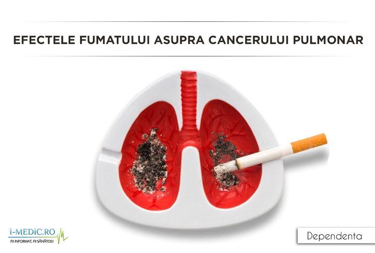 Plamanii sunt organe cu o structura spongioasa , plasati in interiorul cavitatii toracice. In procesul de respiratie, aerul patrunde la nivelul traheei, de unde ajunge in bronhii, apoi in bronhiole si in final in sacii de aer din plamani, numiti alveole - http://www.i-medic.ro/…/efectele-fumatului-asupra-cancerulu…